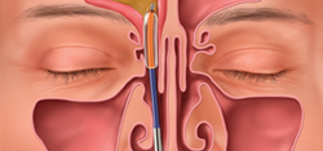 Read adult ear nose and throat express